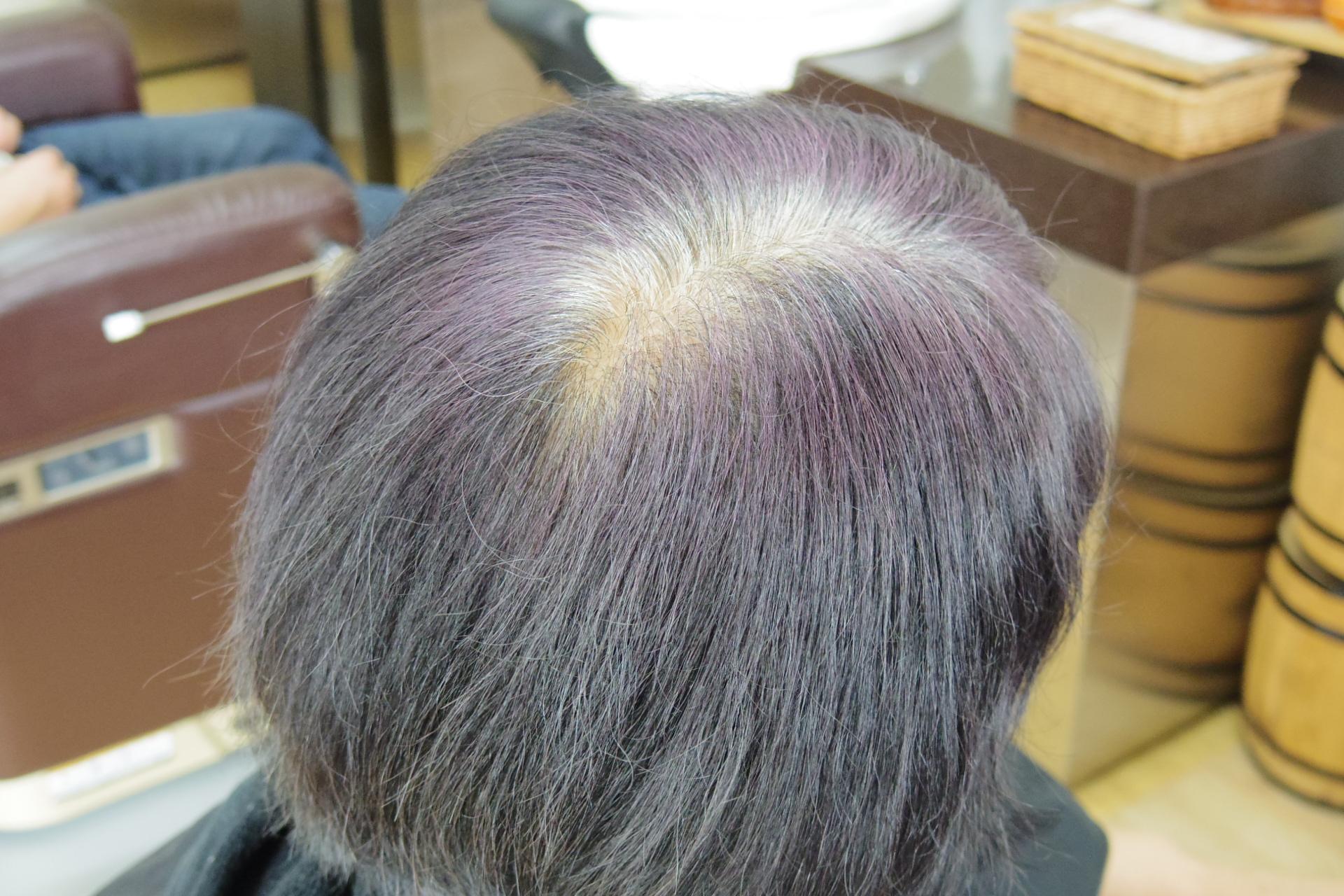 ハーバルマホガニーで白髪染めビフォア
